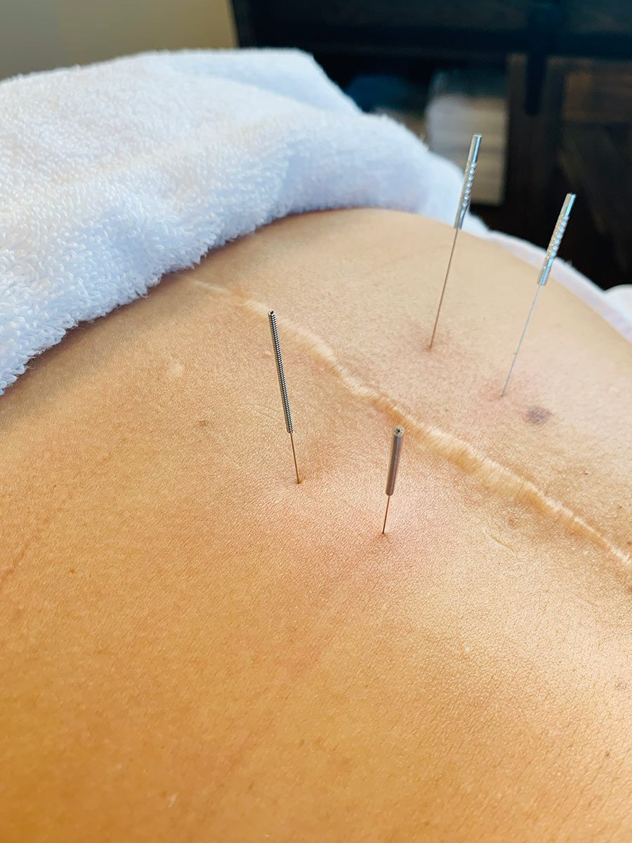 Dry Needling is a great way to help with pain.